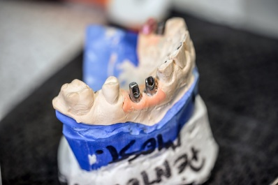 useful-info-when-getting-dental-implants